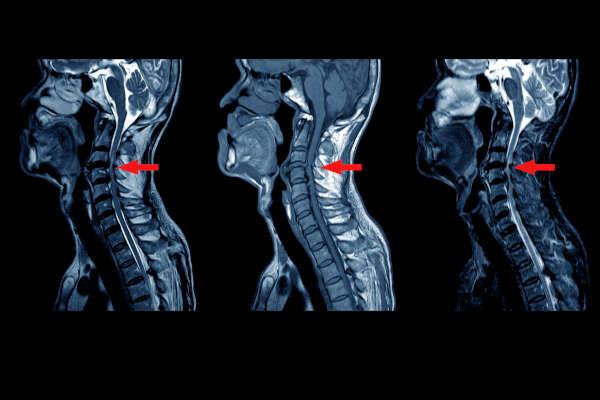 MRI image