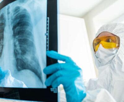radiologist interpreting x ray during Covid-19