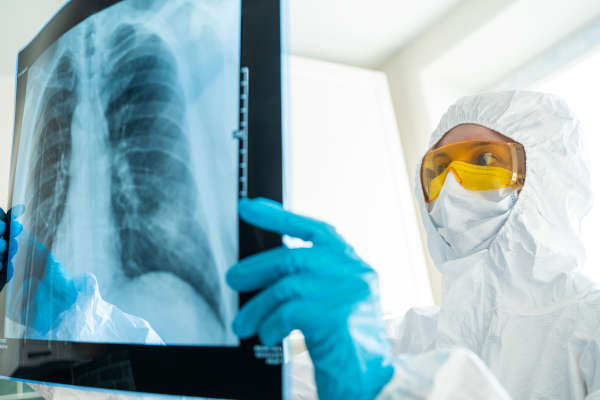 Radiologist examining the chest X-ray during the covid pandemic