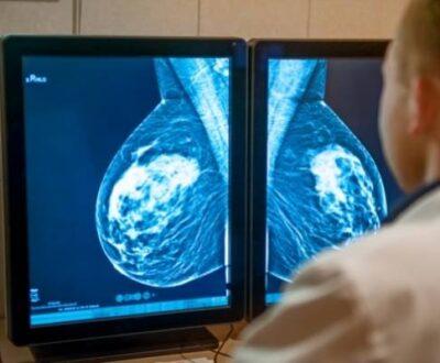 mammogram reading